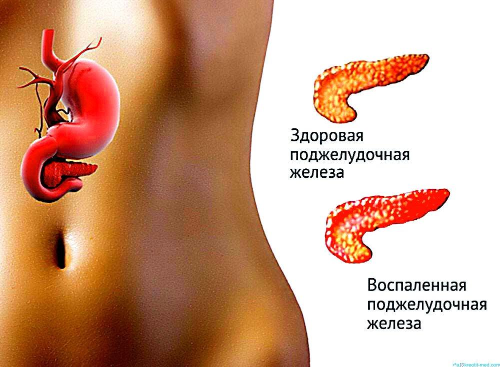 Заболевания поджелудочной железы и их признаки