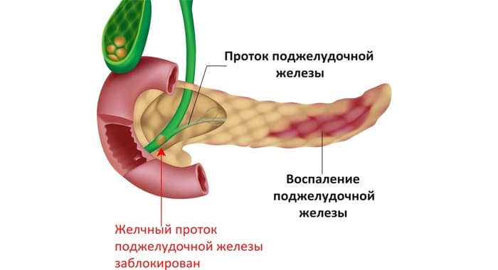 kogda-otekaet-podzheludochnaya-zheleza