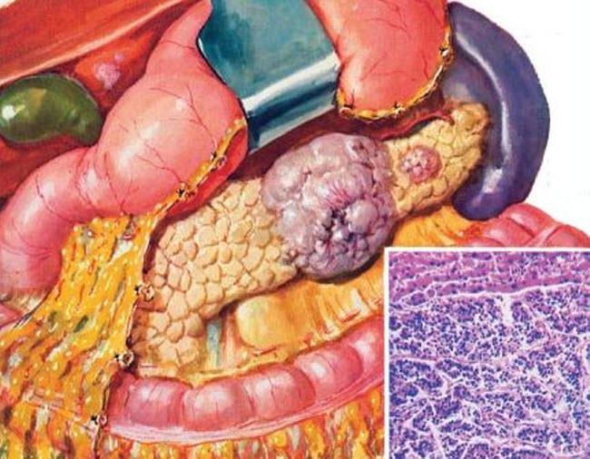 rak-podzheludochnoj-zhelezy-simptomy-proyavlenie