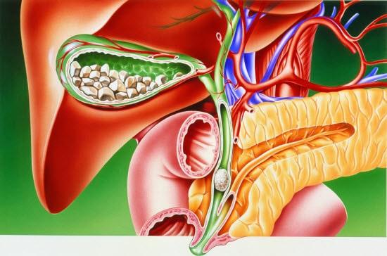 Картофельная кожура лечение желчекаменной болезни медицина методические рекомендации шпаргалки лекции