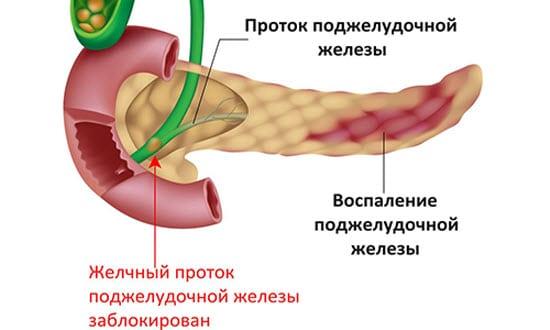 Лечение панкреатита в домашних условиях 92