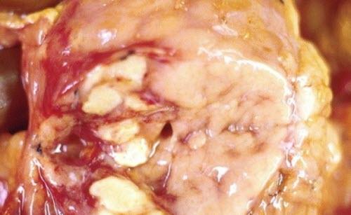 Симптомы жировой дистрофии поджелудочной