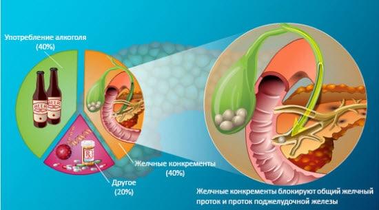 pankreatit-simptomy3