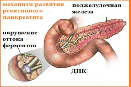 Реактивный панкреатит диета