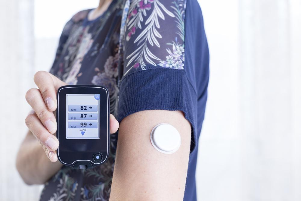 Искусственная поджелудочная железа для диабетиков