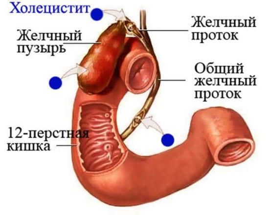 операция холецистэктомия лапароскопическая