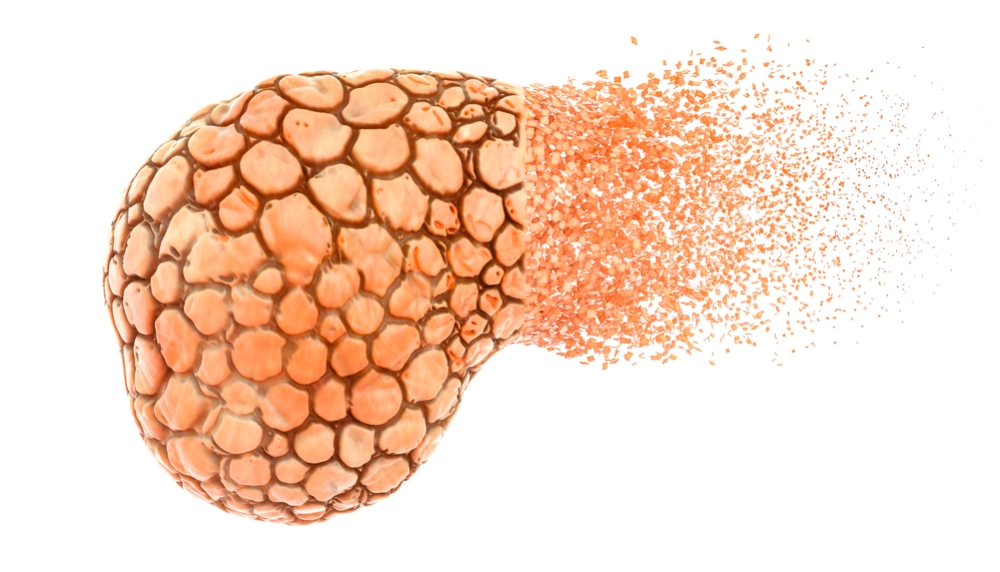 Возникновение панкреатита
