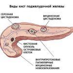 Псевдокиста поджелудочной железы: симптомы и последствия, хирургическое  лечение