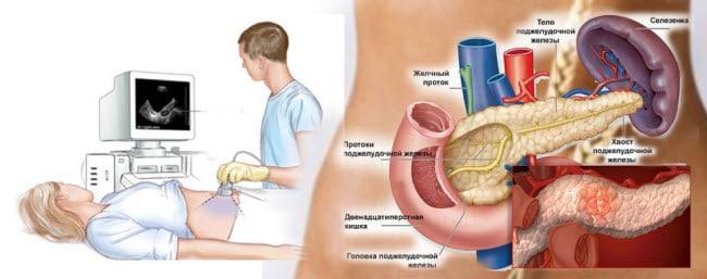 Как стимулировать работу поджелудочной железы