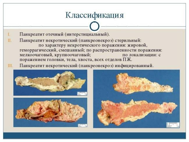 pankreatit-kartinki1
