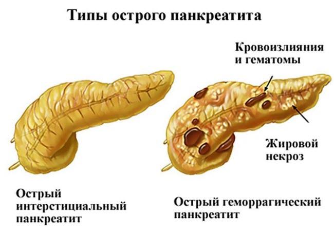 ostryj-pankreatit-gemorragicheskij-pankreonekroz