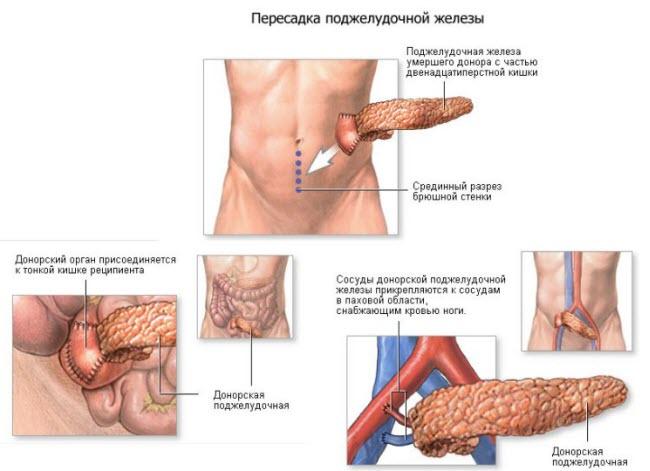 пересадка поджелудочной железы при сахарном диабете
