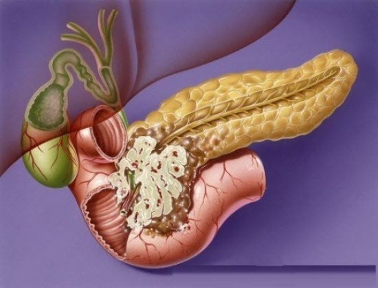 Лечение рака поджелудочной железы на всех стадиях, а также лечение содой