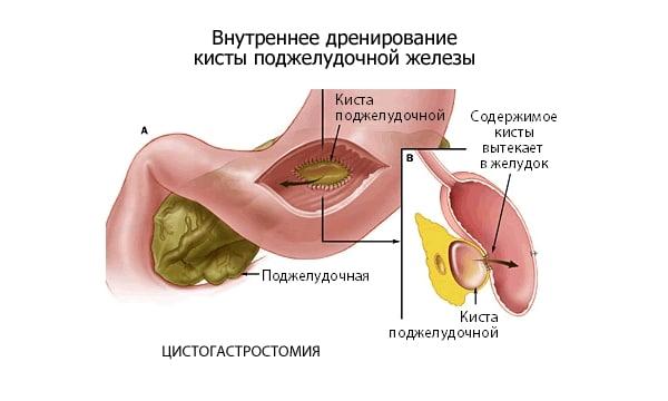 Диета 5 - При заболеваниях печени, желчного пузыря