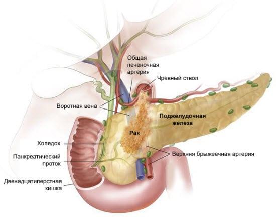 Нейроэндокринная опухоль поджелудочной железы прогноз