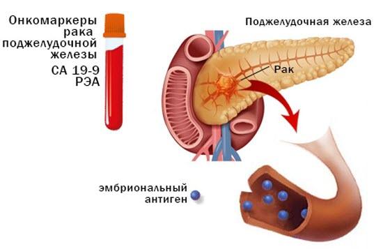 Онкомаркеры при опухолях яичка