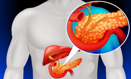 как жить с хроническим панкреатитом и холециститом