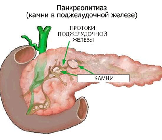 Диета после операции при панкреонекрозе