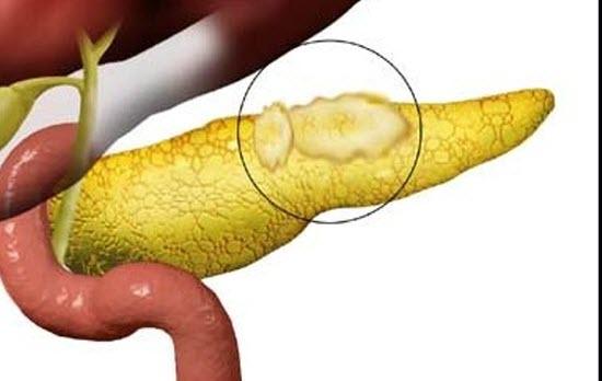 Как долго можно принимать ферменты при хроническом панкреатите
