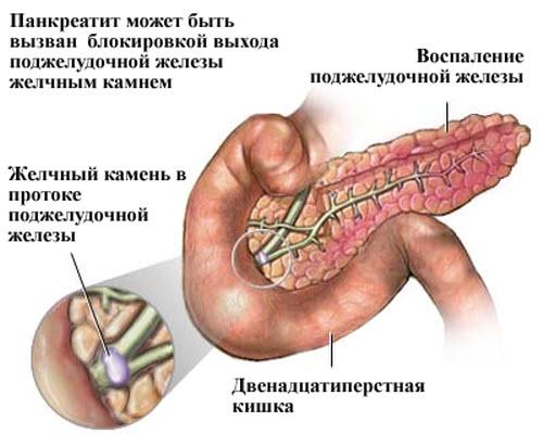 Симптомы и лечение обострения хронического панкреатита