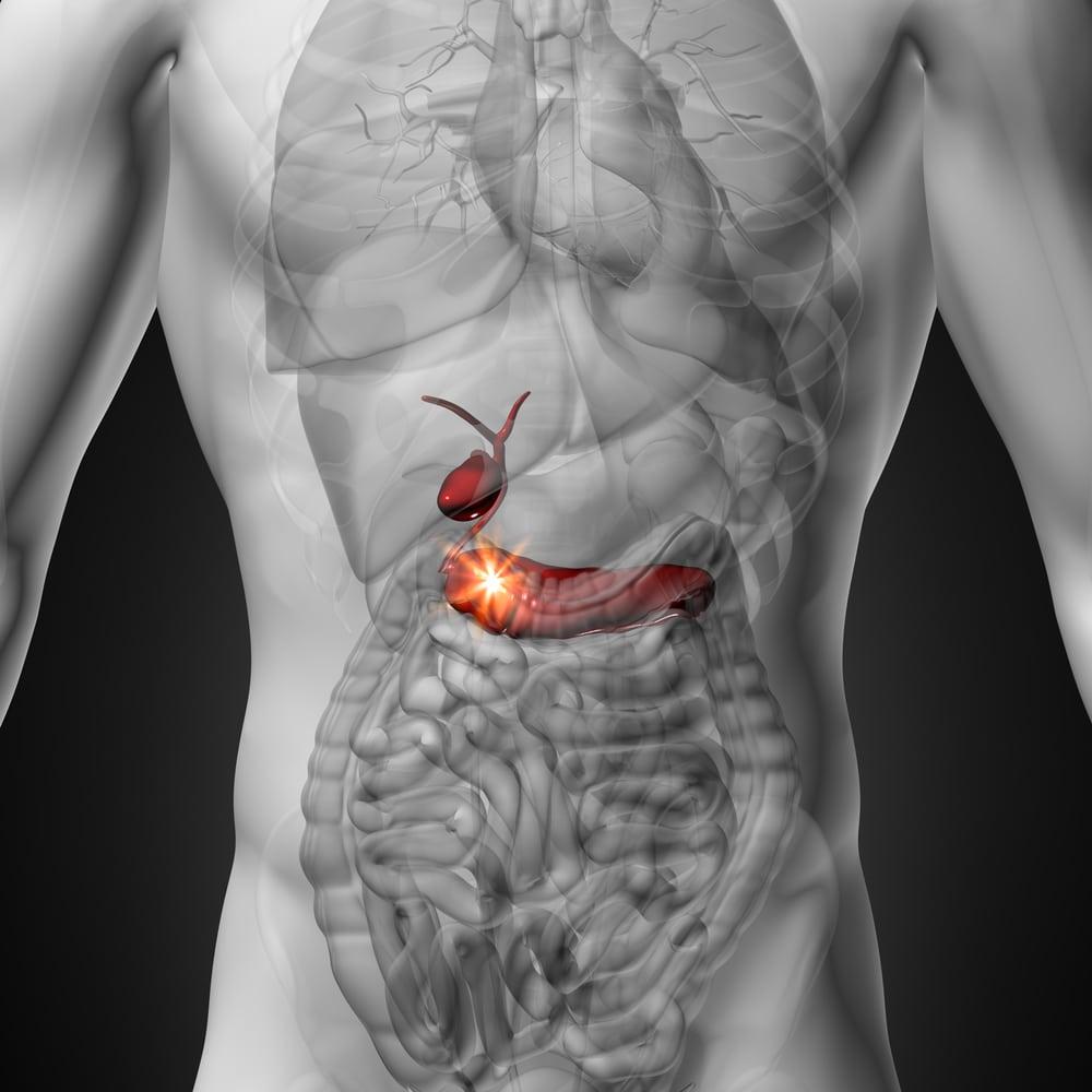 Как отличить панкреатит от холецистита