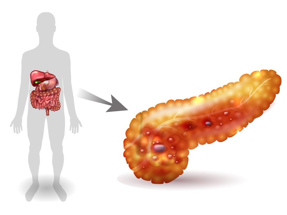 Особенности острого панкреатита