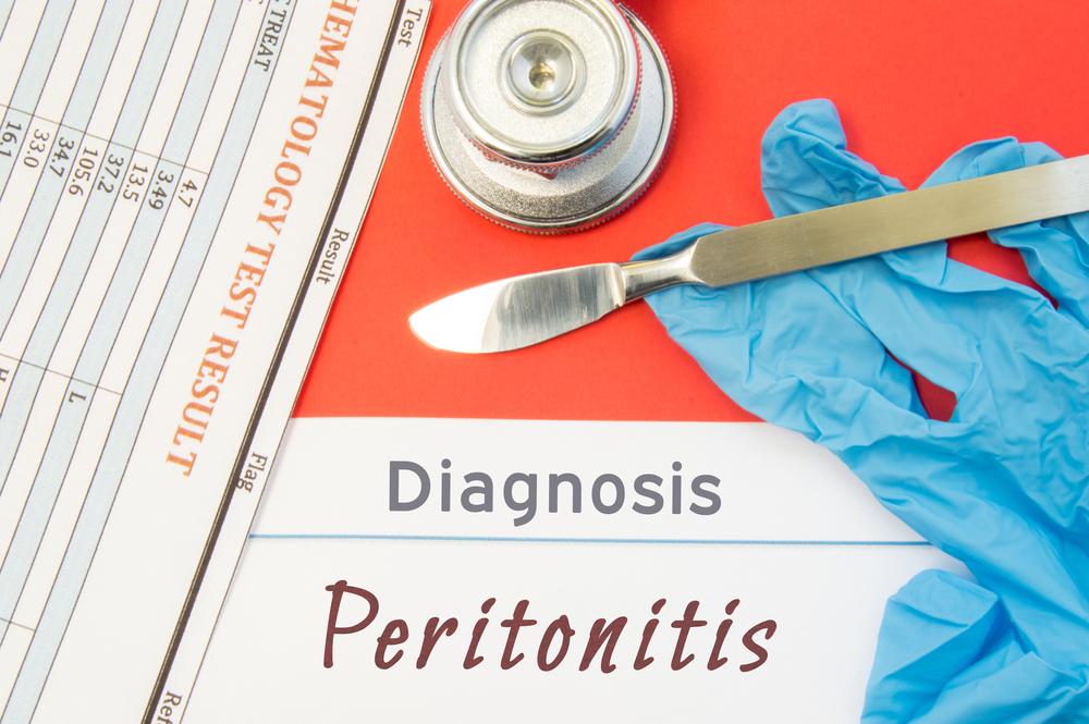 Перитонит поджелудочной железы